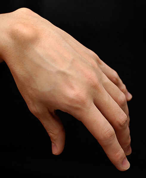 Ganglion- Lump on the wrist or something more?